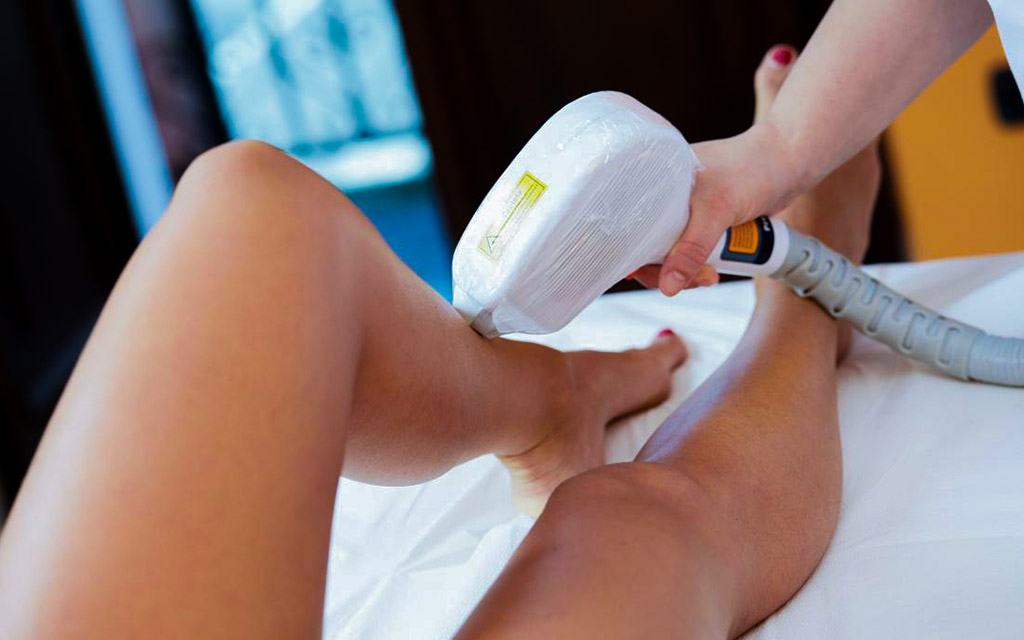 laser hair removal process at beauty by laser