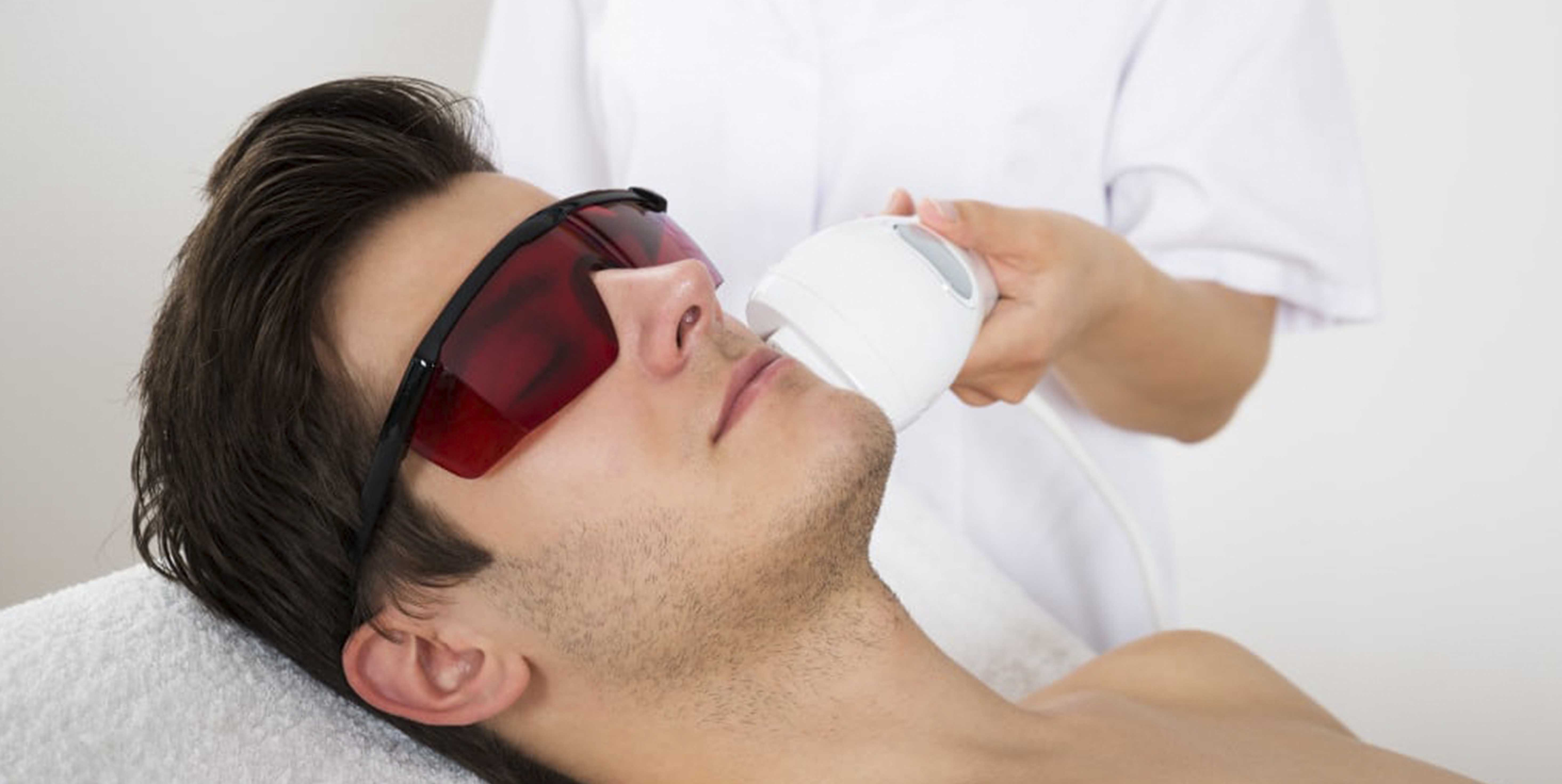 hair removal for man