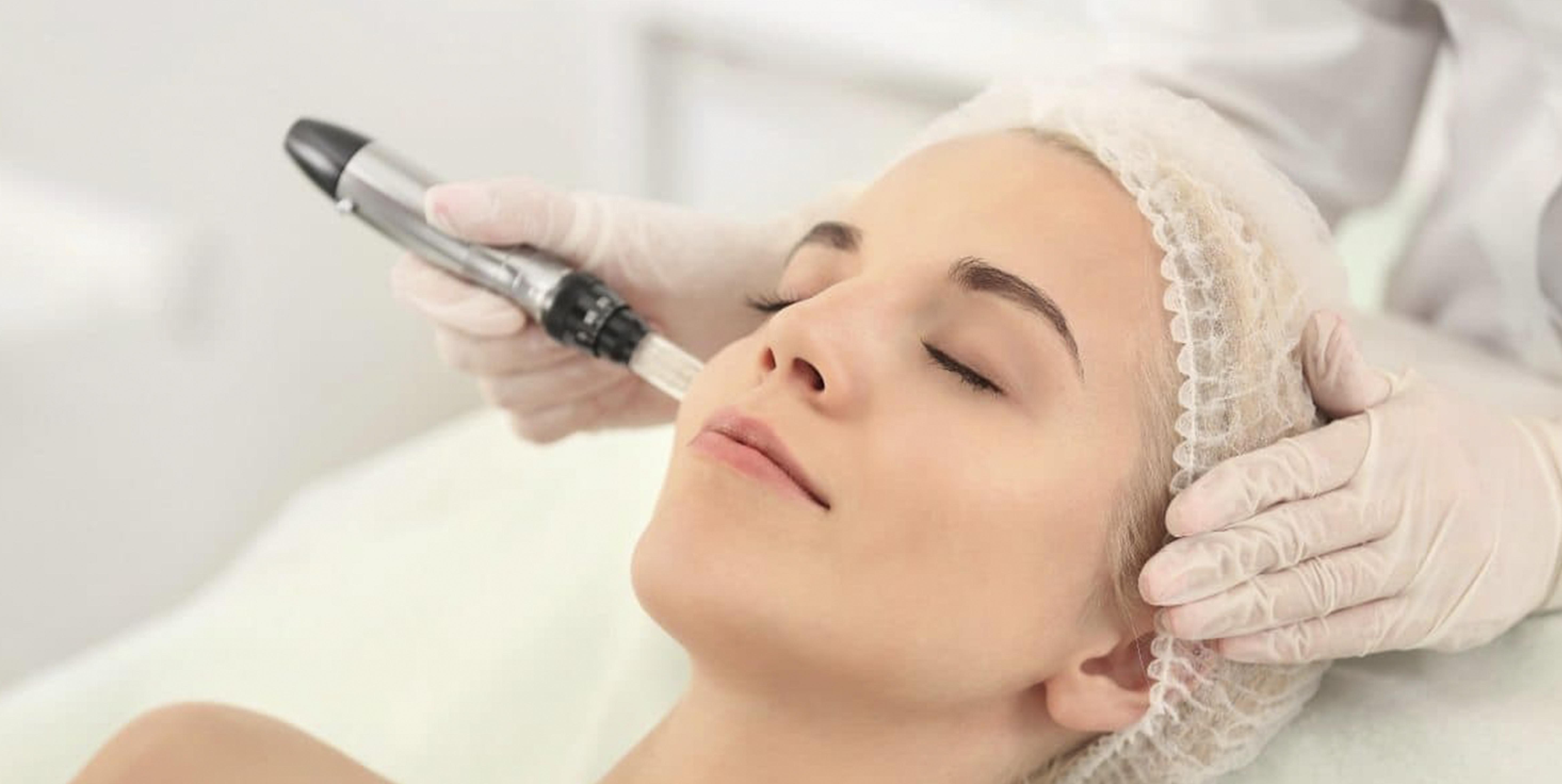 Microneedling process by a therapist at beauty by laser